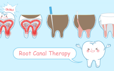 Root Canal Treatment – The Magic Within The Tooth