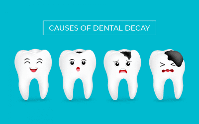 Causes of Dental Decay