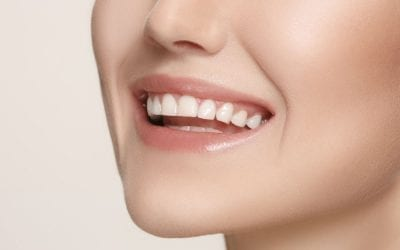 Total Smile Makeover in Singapore