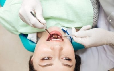 Commonly Asked Questions About Dental Fillings