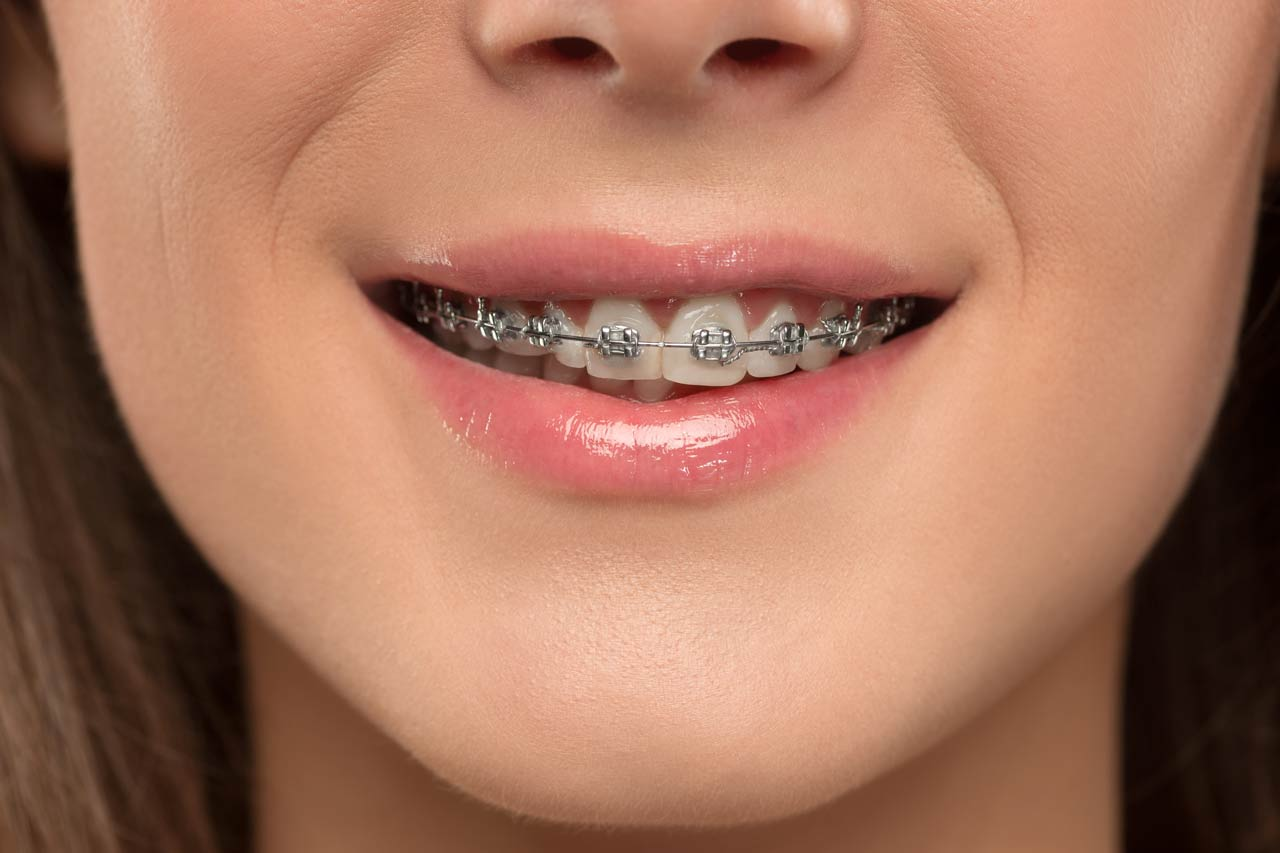 Female wearing braces in Singapore | Braces Singapore |