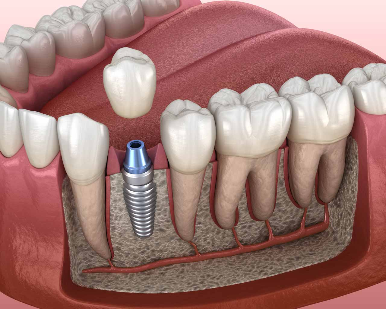 Single Dental Implant Crown