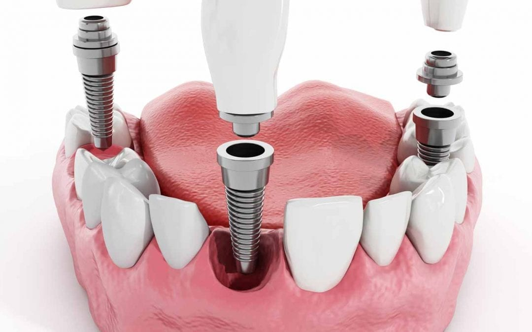 The TRUTH About Dental Implants – Here's why they might not be suitable for you