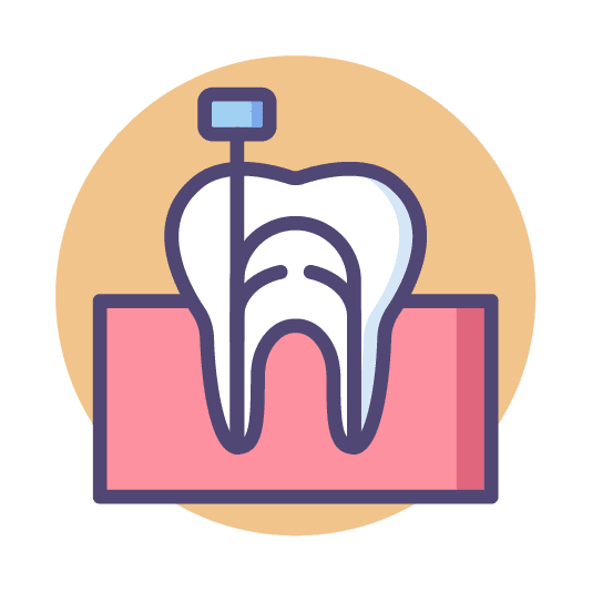 root canal treatment in singapore   endodontic treatment