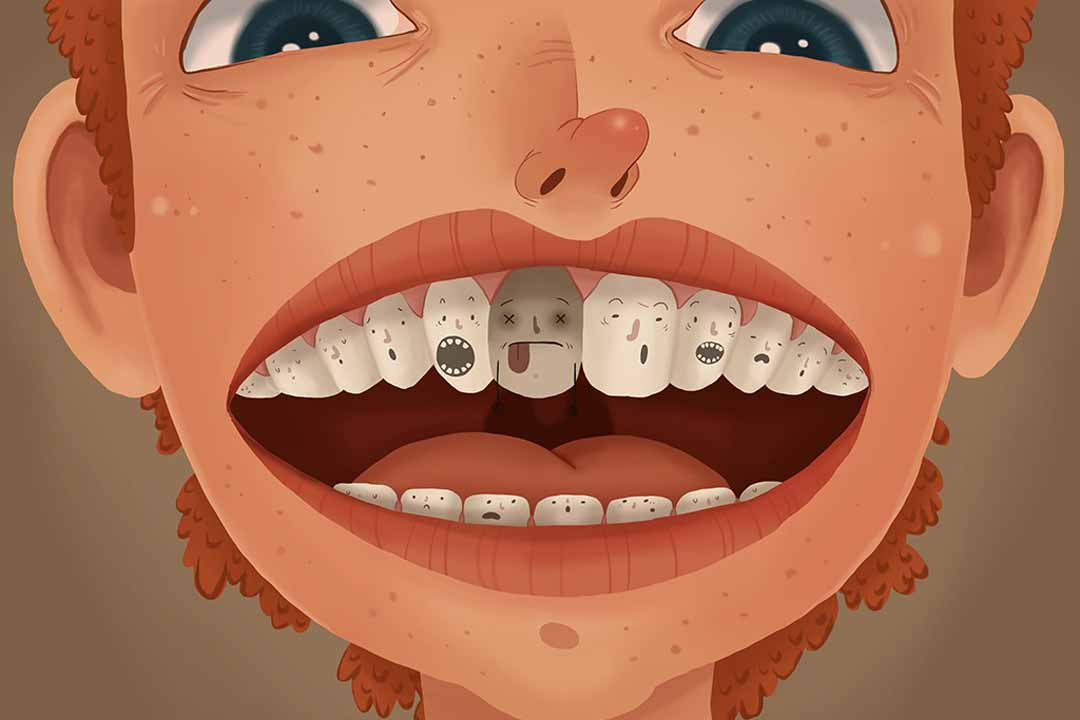 Intrinsic tooth stains