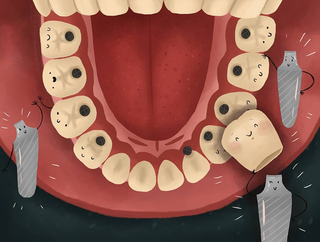 Dental Implant in mouth view graphic