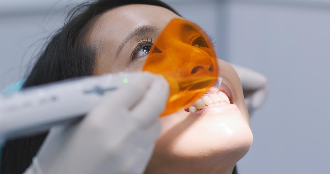 Dental veneers are not Permanent - Have to be replaced once every 15 - 20 years