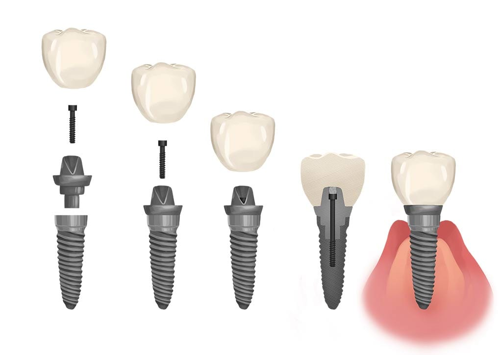 dental implant crown graphic