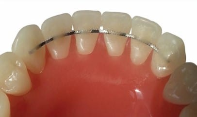 permanent lingual retainers