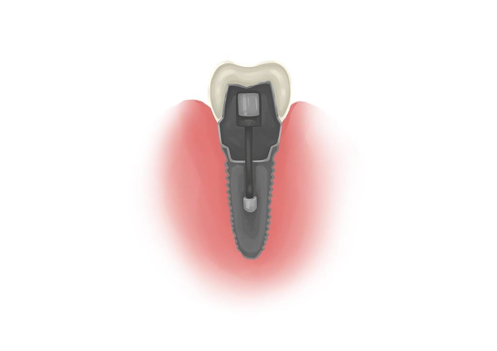 cross section of a single dental implant