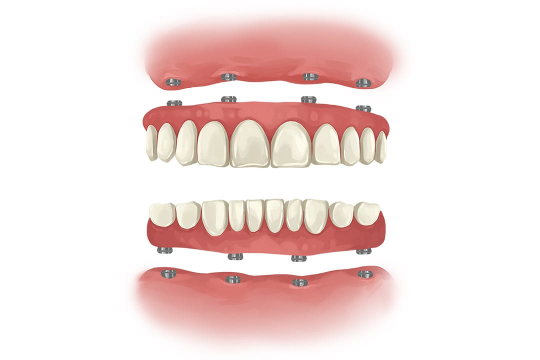 all on 4 dental implant 2 arches