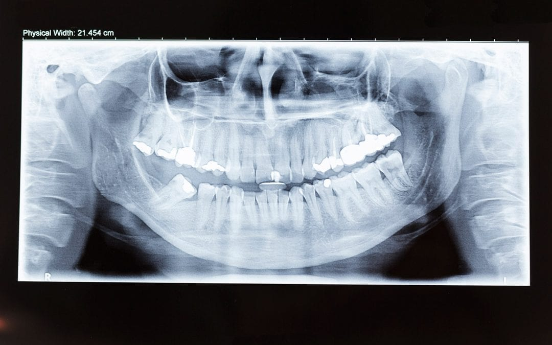 Getting the facts straight on invisible aligners: Yay or nay to X-rays?