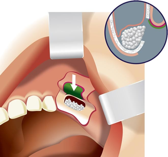 sinus lifting and bone grafting