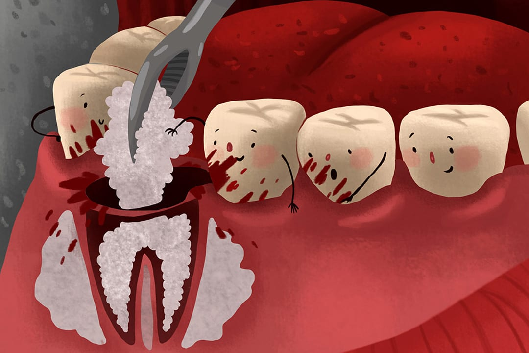 tooth bone grafting required due to bone loss