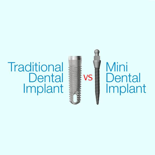 Traditional Dental Implants vs Mini Dental Implants