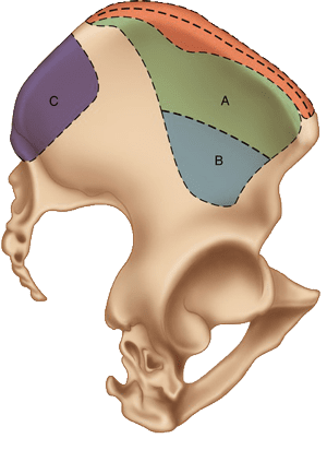 sources of bone grafting in singapore