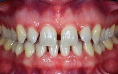 Diastema Causes and Treatment Options