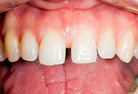 diastema in Singapore | Treatment of Diastema in Singapore