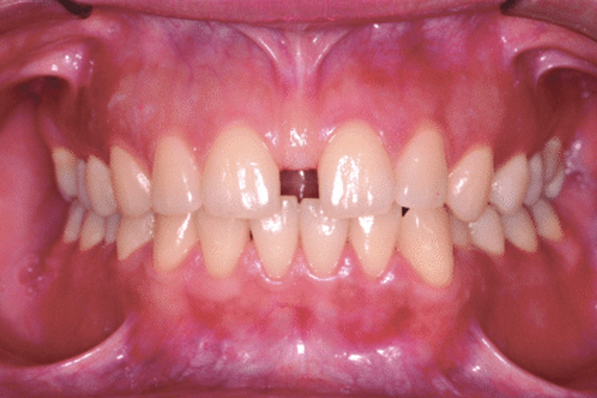 enlarged labial frenum diastema