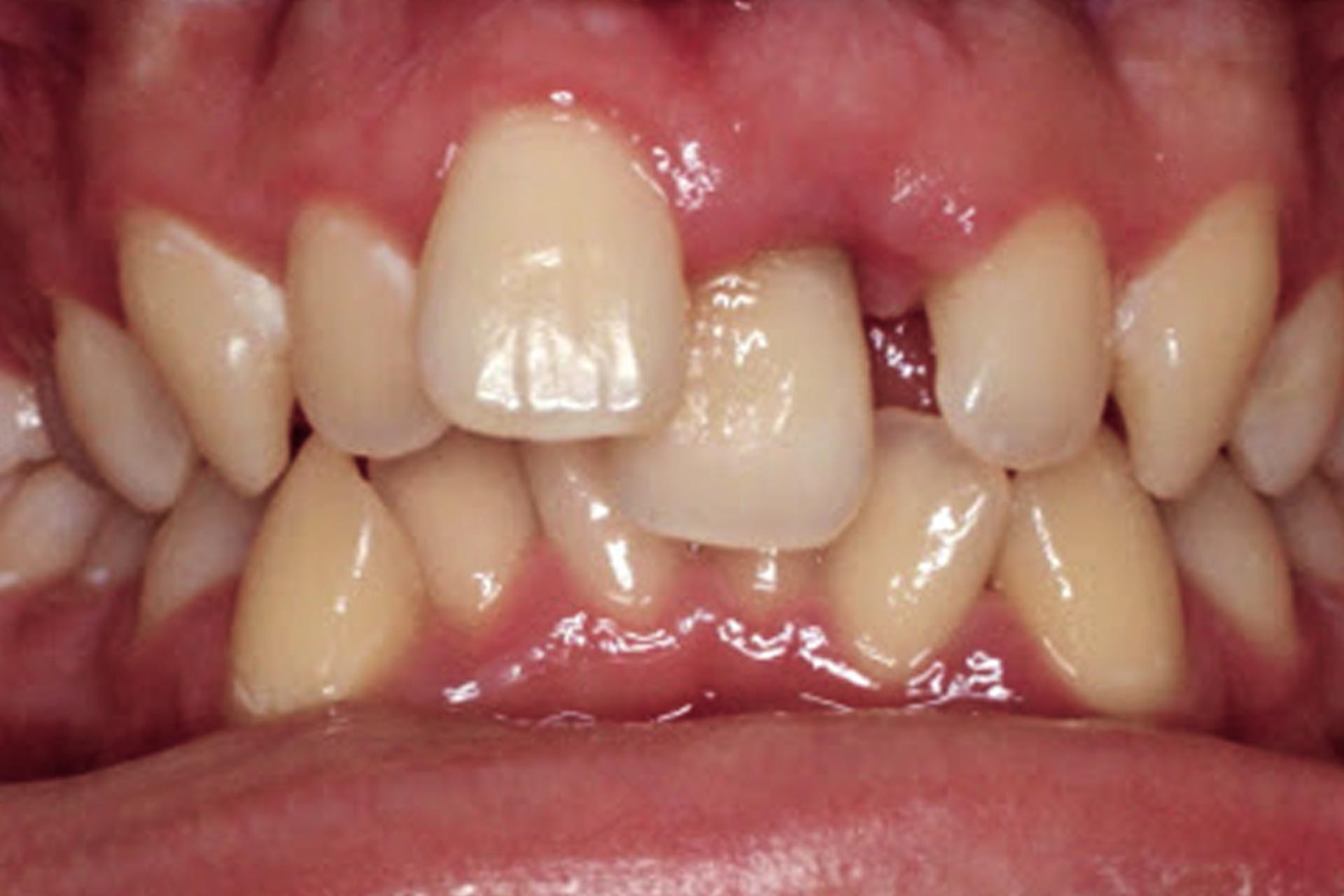 mismatched teeth size