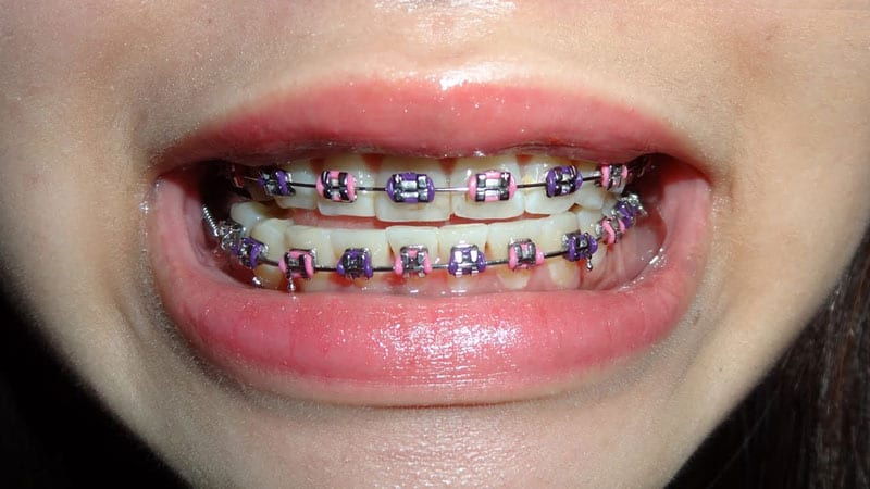 multi-coloured braces combinations