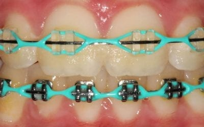 Choosing the Right Colour of Braces