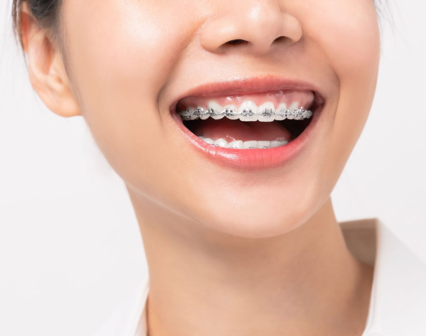 selecting the right braces colour