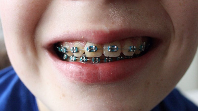 braces treatment for kids in Singapore