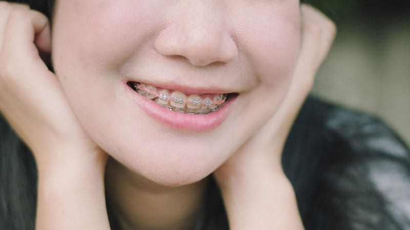 reduced discolouration of braces