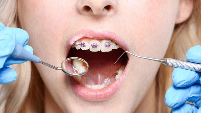 selecting the right braces colour in Singapore