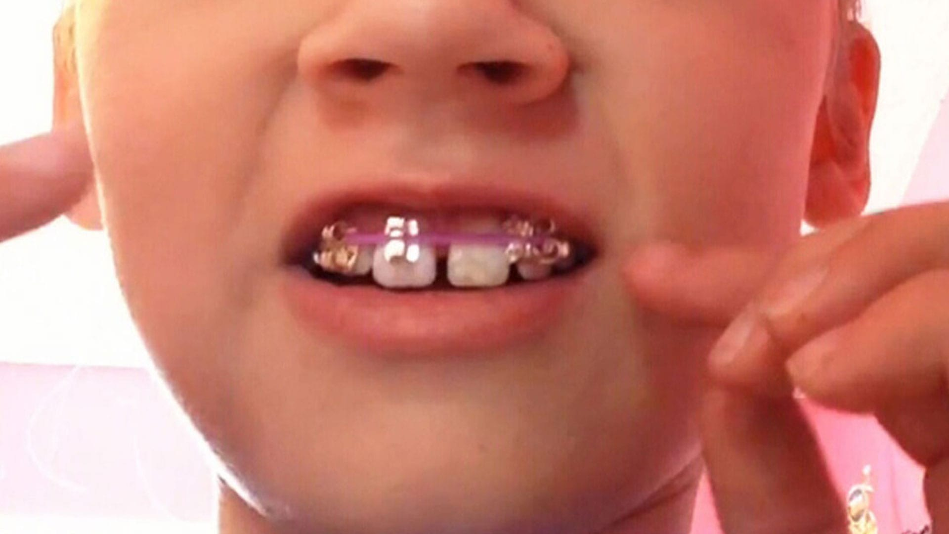 Child playing with DIY braces