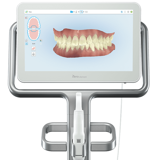 Intraoral Scanning & Digital Dentistry: iTero Elements 2