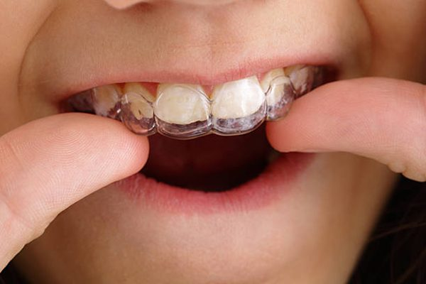 wearing Invisalign clear aligners
