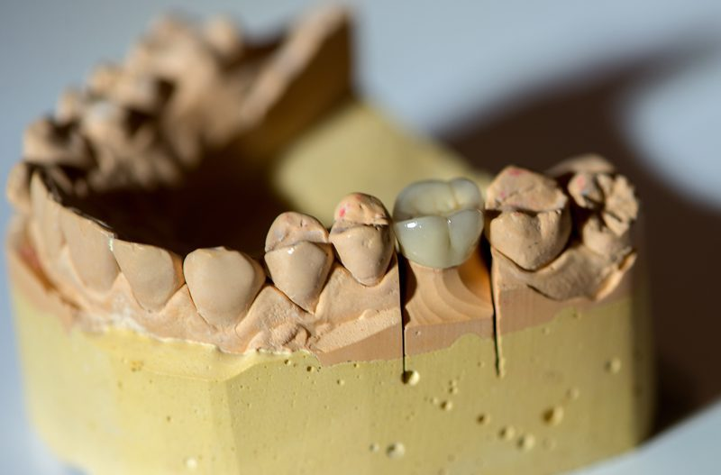 What Problems Could Develop with a Dental Crown?