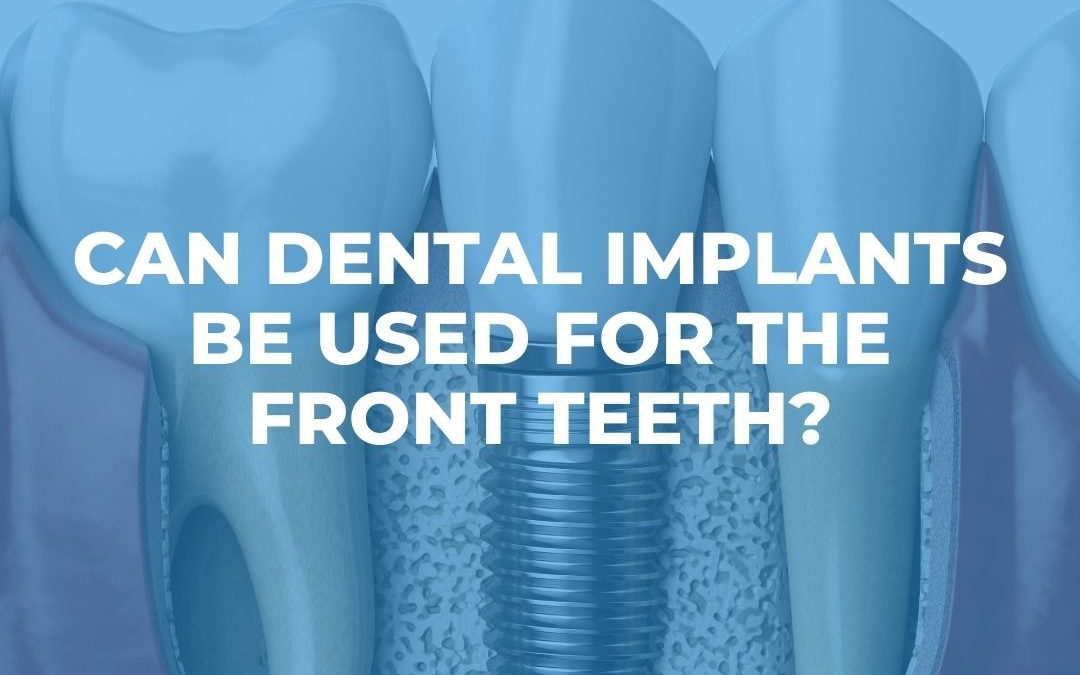 Can Dental Implants be Used for the Front Teeth?